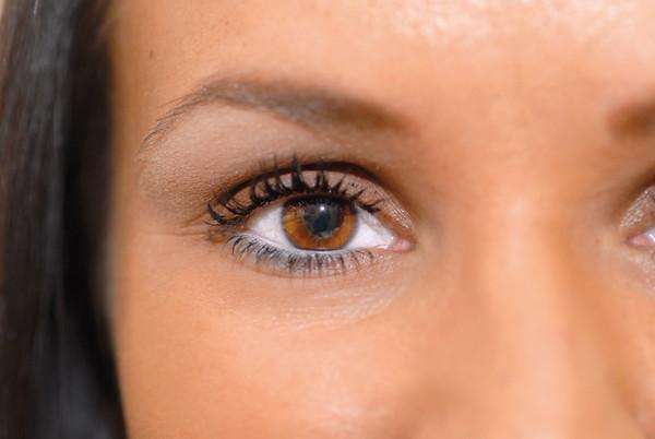 Dass die dunklen Kreise unter den Augen bedeuten
